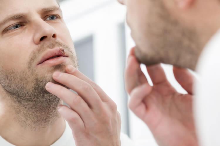 acupuntura para herpes zoster